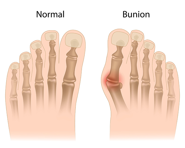 Bunions Treatment in Howard Beach